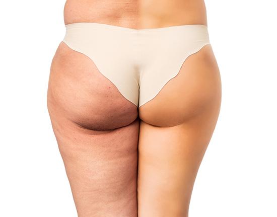 Tratamiento celulitis piernas